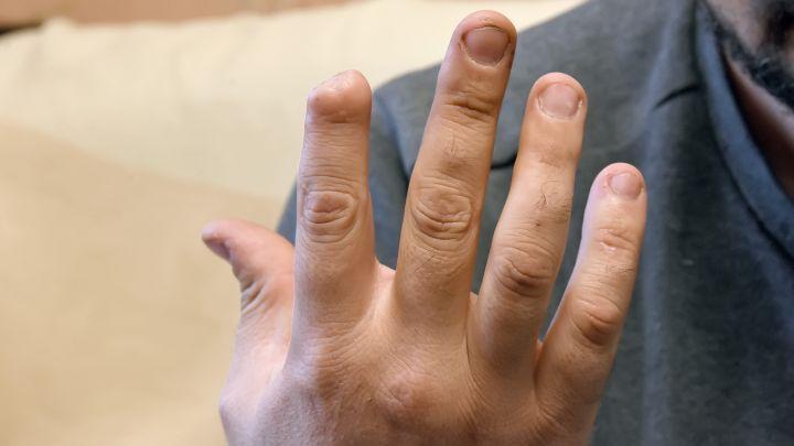 «Я потерял палец,но остался безкомпенсации от начальства»